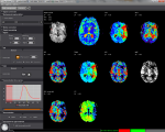 Olea Medical (Moduły neurologiczne)