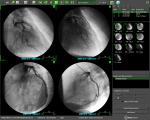 TomTec (Angiografia)
